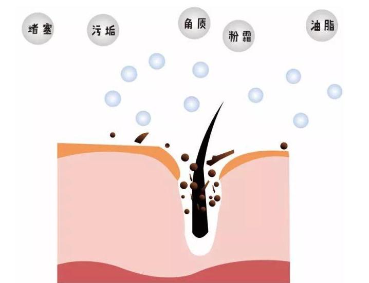 毛孔堵塞怎么疏通毛孔?毛孔堵塞的原因你都知道吗?专业人士告诉你!