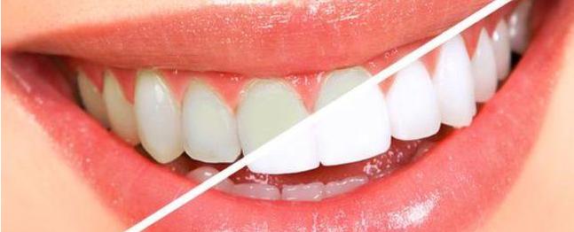 冷光美白牙齿要多少钱一次?和皓齿美白区别你确定都知道?