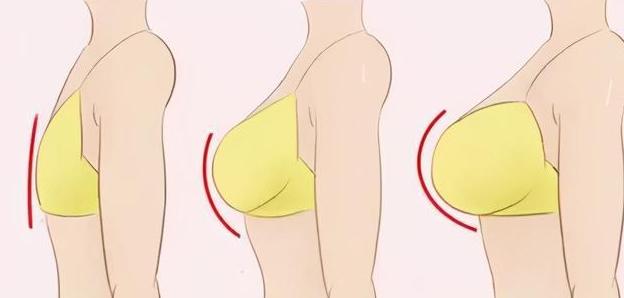 自体脂肪填充胸部有什么危害?做之前,这些你要好好注意!