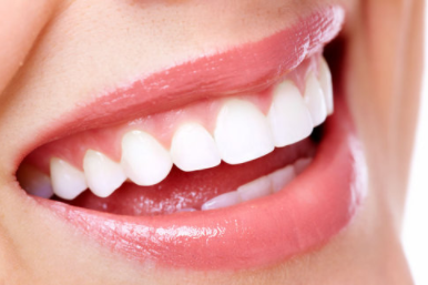 牙齿整形种类大全!快看你适合哪一种!