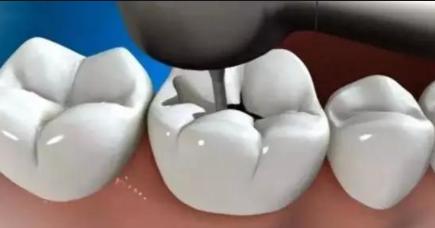 为什么补牙的价格相差这么大?不同材质的区别你知道吗?